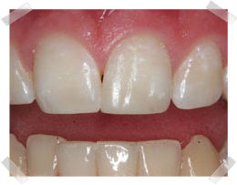 cosmetic dentistry after bonding