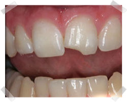 cosmetic dentistry before bonding