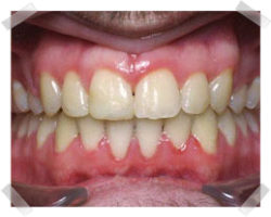 cosmetic dentistry after braces