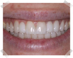 cosmetic dentistry after bridges