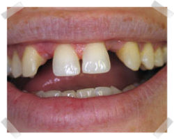 cosmetic dentistry before bridges