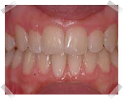 cosmetic dentistry after clear step