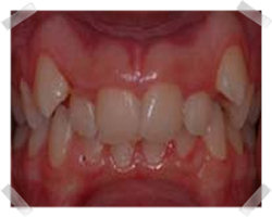 cosmetic dentistry before clear step
