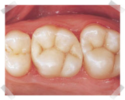 cosmetic dentistry after composite fillings