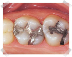 cosmetic dentistry before composite fillings