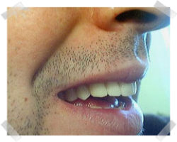 cosmetic dentistry after dentures
