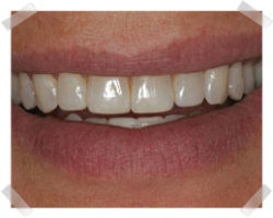 cosmetic dentistry after enamel shaping