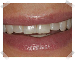 cosmetic dentistry before enamel shaping
