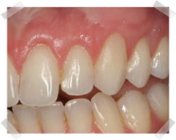 cosmetic dentistry after gum grafts