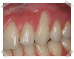 cosmetic dentistry before gum grafts