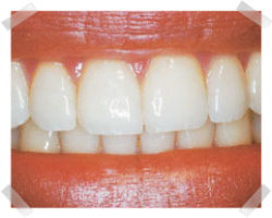 cosmetic dentistry after gum reshaping