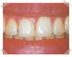 cosmetic dentistry before gum reshaping