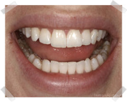 cosmetic dentistry after inman aligner