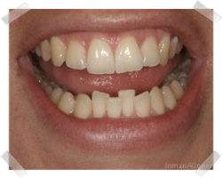 cosmetic dentistry before inman aligner