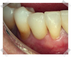 cosmetic dentistry after root implants
