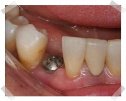 cosmetic dentistry before root implants