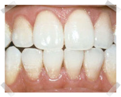 cosmetic dentistry after teeth whitening