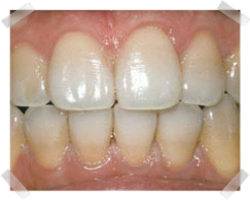 cosmetic dentistry before teeth whitening