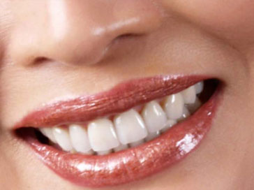 cosmetic dentistry veneers