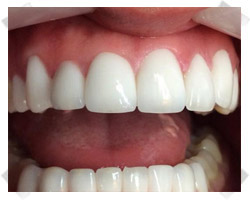 cosmetic dentistry after crowns
