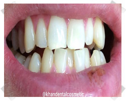 cosmetic dentistry before crowns
