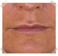 dermal fillers after nose to lip enhancement