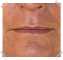 dermal fillers before lip enhancement