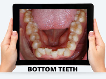 bottom teeth