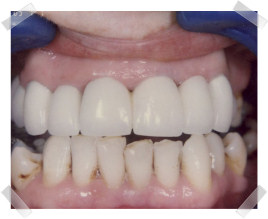 cosmetic dentistry after poor teeth and gums