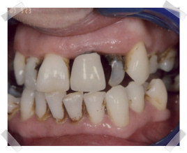 cosmetic dentistry before poor teeth and gums