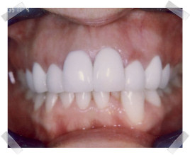 cosmetic dentistry after crooked teeth