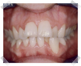 cosmetic dentistry before crooked teeth