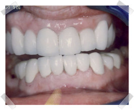 cosmetic dentistry after dark teeth