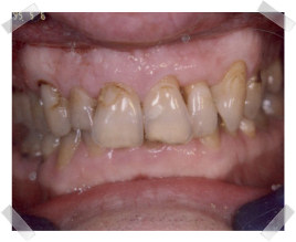 cosmetic dentistry before dark teeth