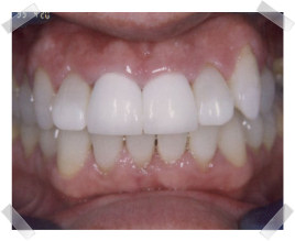 cosmetic dentistry after old crown