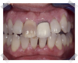 cosmetic dentistry before old crown