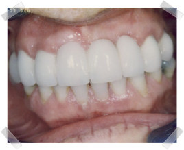 cosmetic dentistry after loss of anterior teeth