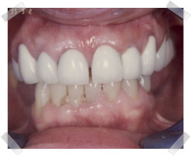 cosmetic dentistry after old fillings