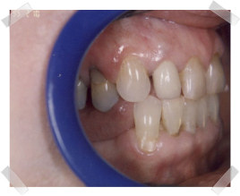 cosmetic dentistry before old fillings