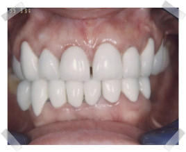 cosmetic dentistry after aged worn dentition