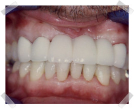 cosmetic dentistry after missing teeth