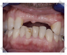 cosmetic dentistry before missing teeth