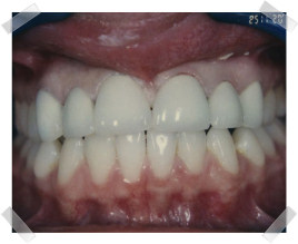 cosmetic dentistry after gap between teeth