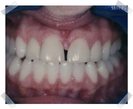 cosmetic dentistry before gap between teeth