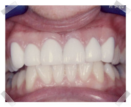 cosmetic dentistry after crooked anterior teeth
