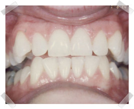 cosmetic dentistry before crooked anterior teeth