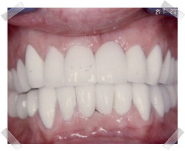 cosmetic dentistry after old crown and bridgework
