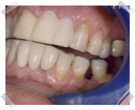 cosmetic dentistry before old crown and bridgework
