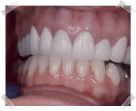 cosmetic dentistry after crooked upper anterior teeth