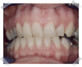 cosmetic dentistry before crooked upper anterior teeth